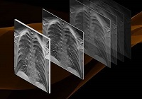 3D DR – Best Tool for Lung Cancer Screening