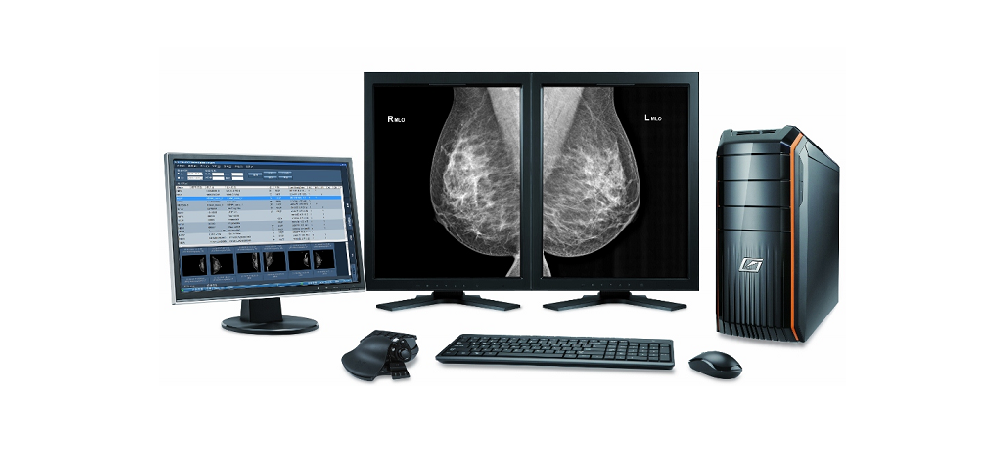 Digital Mammography Viewing Workstation